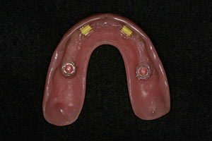 "Upper overdenture with clips to ""snap onto"" framework"