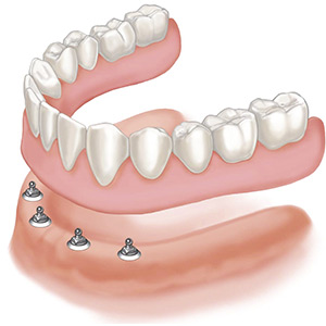 A denture can be secured by the use of implants to stop movement and increase retention. In this situation the denture can be removed by the patient for good oral hygiene around the implants
