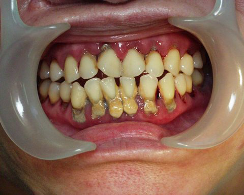 Periodontal disease before treatment